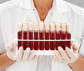 Диета по группе крови: меню, рацион, отзывы о 1,2,3,4
